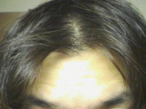 前髪 生え際 はげ 前髪、生え際のスカスカ度合いによるハゲ基準。スカスカ度合い別薄毛...