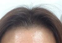 前髪の根元が薄い