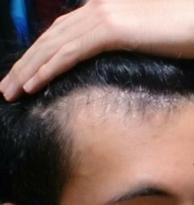 M字ハゲが進行した剃り込み部分