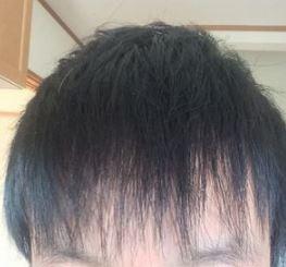 前髪が薄い